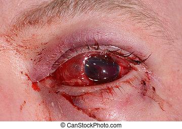 eye exam - Close up of the traumatised eye during eye...