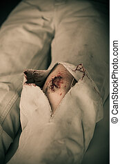 Close up of torn pants with large bleeding gash as seen from...