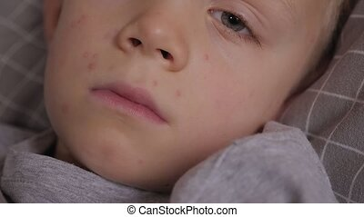 Close-up portrait of a little sad sick boy in bed with chicken pox.