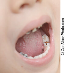 baby teeth with caries - close up shot of baby teeth with...