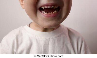 Close up shot of boy teeth. Health care, dental hygiene, ...