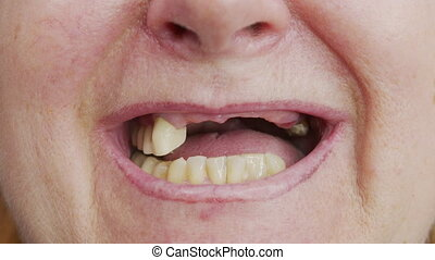 Close-up toothless mouth of an woman. - Close-up toothless ...