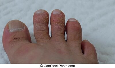 close-ups of human foot and fingers, toes male human fungal disease which,