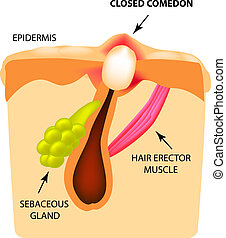 Closed comedones. white heads acne. The structure of the skin. Infographics. Vector illustration on isolated background