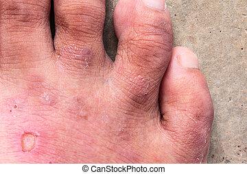 closeup , γδέρνω , μύκητας , πόδι , athlete's, psoriasis , ...