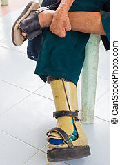 closeup asian old leprosy woman with aluminium prostheses