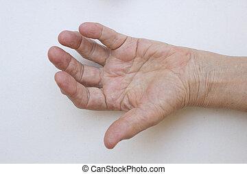 closeup, de, mão, com, artrite