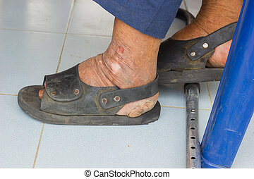 closeup feet of old asian man suffering from leprosy