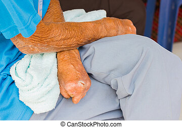 closeup hand of old asian man suffering from leprosy, ...