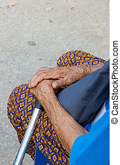 closeup hand of old asian woman suffering from leprosy, ...