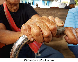 closeup hands of asian old man suffering from leprosy, ...