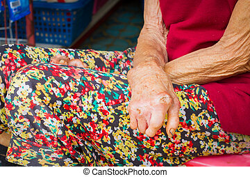 closeup hands of old woman suffering from leprosy, amputated...