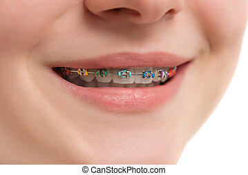 Closeup multicolored Braces on Teeth. Beautiful Female Smile with Self-ligating Braces. Orthodontic Treatment.