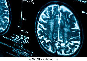Closeup of a computer axial tomography scan (CAT scan)