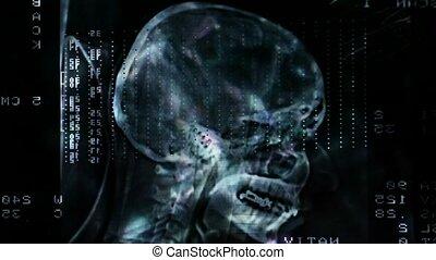 Closeup of a CT scan