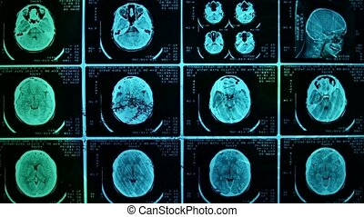 Closeup of a CT scan with brain and skull on it