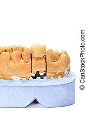 dental mould