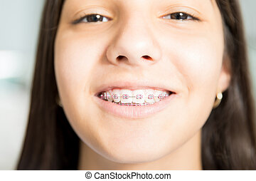 Closeup Of Smiling Teenage Girl With Braces