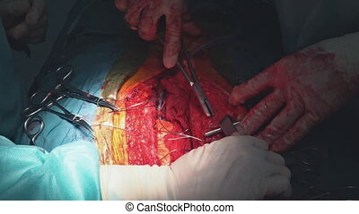 Close-up of stitched wound after heart cardiac bypass surgery in operation room