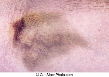 Closeup on a bruise on wounded men arm skin