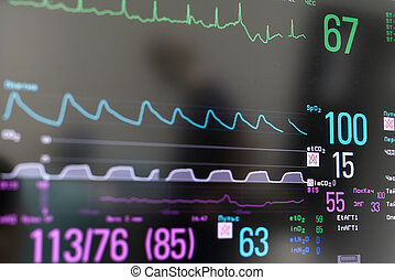 Closeup photo of EKG monitor