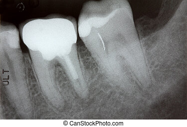 Closeup photo of teeth x-ray showing problem with infected...