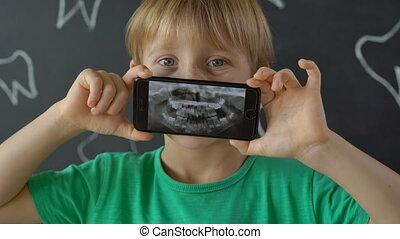 Closeup shot of a little boy with missing milk teeth showing...