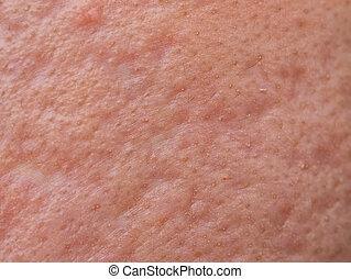 closeup skin problems, nodular cystic acne skin