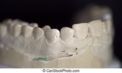 Gypsum jaw model with an implant is scanning inside a dental 3D scanner in a lab. Red laser is moving on its surface. Closeup video recording.