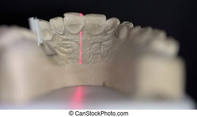 Closeup view at scanning process in dental 3D scanner