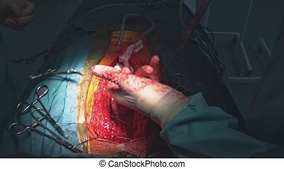 Closing chest after heart surgery with surgical tools