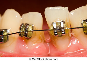 Closing of gap with dental braces - A macro shot of dental...