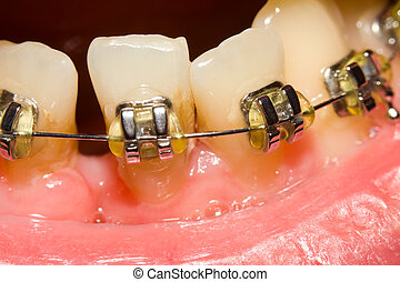 A macro shot of dental braces, (orthodontic braces) are a device used in orthodontics to align teeth and their position with regard to a person's bite.