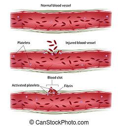clotting, eljárás, vér, eps8