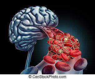 coágulo, cérebro, sangue