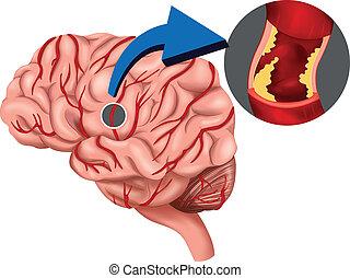 coágulo, cerebro, concepto, sangre
