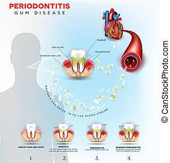coeur, problèmes, maladie, gencive, periodontitis, cause