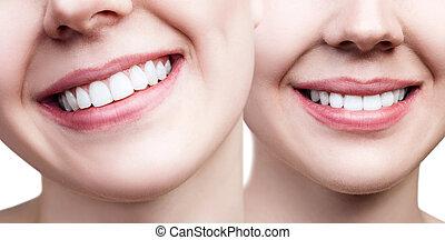 colagem, de, perfeitos, femininas, dentes, closeup.