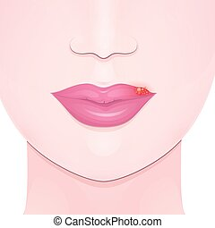 herpes, close-up lips with cold sore, upper lip inflammation and bubbles