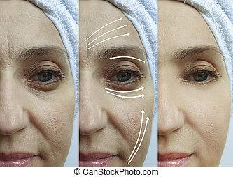 collage, avant, face ride, traitement, après, femme