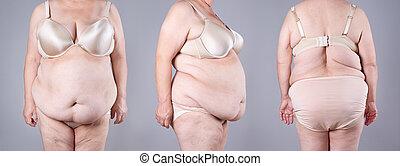 collage, gris, chirurgie, concept, plastique, ventre, fond,...