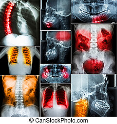 Collage of human X-rays photo