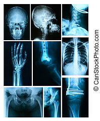 Collage of many X-rays. Very good