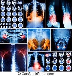collage, photo, rayon x, humain