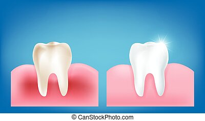 Collection of dirty tooth and gum compare with clean and...