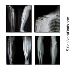 collection of x-ray (broken shoulder, broken legs)