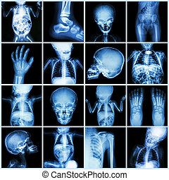 Collection X-ray part of child body ( Whole body : skull head neck face spine shoulder chest thorax lung heart abdomen arm elbow forearm hip pelvis thigh leg foot hand wrist ankle joint intestine etc)