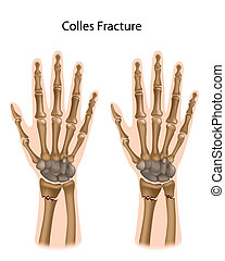 Colles fracture, eps8 - Fracture of the radius and ulna
