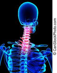 collo, doloroso, scheletro, raggi x, 3d, illustration.
