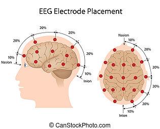 collocamento, eeg, elettrodo, eps10
